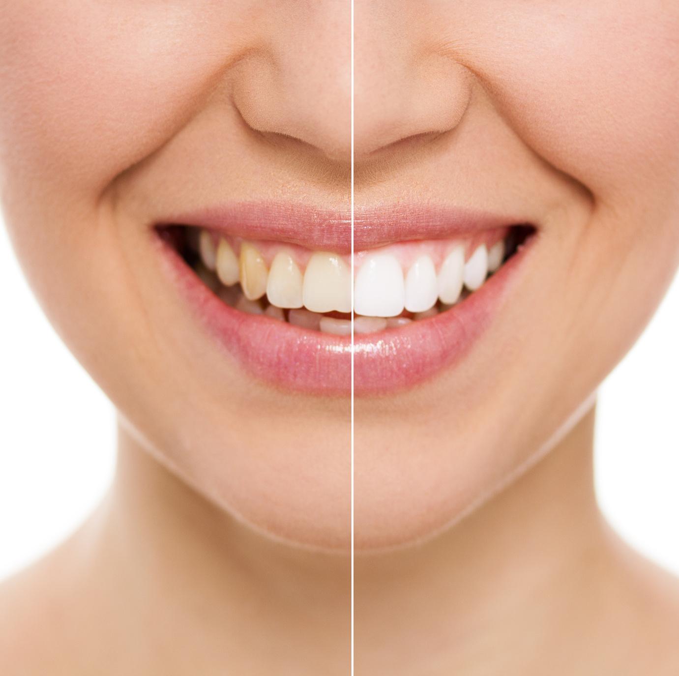 5 datos importantes acerca del blanqueamiento dental