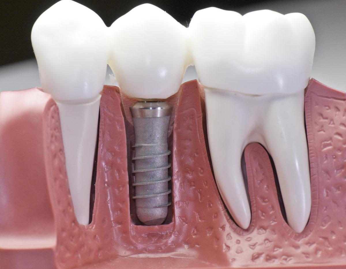 Conozca 5 aspectos claves sobre los implantes dentales