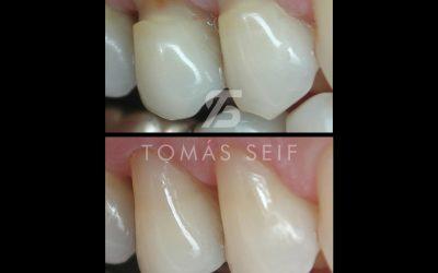 Desgaste de los cuellos dentales y sus soluciones.