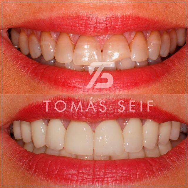 Fracturas Dentales
